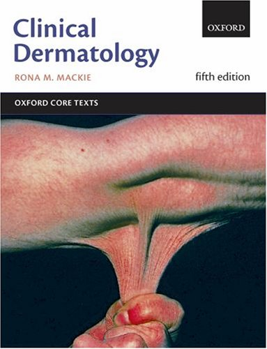 Clinical Dermatology By Rona M. MacKie