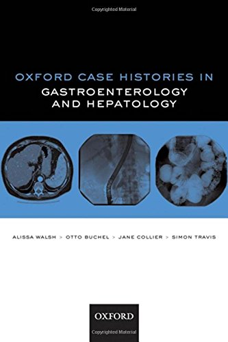 Oxford Case Histories in Gastroenterology and Hepatology By Alissa J. Walsh