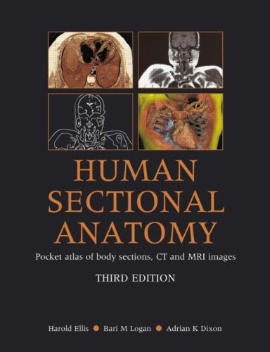 Human Sectional Anatomy: Pocket Atlas of Body Sections, CT and MRI Images, Third Edition By Harold Ellis