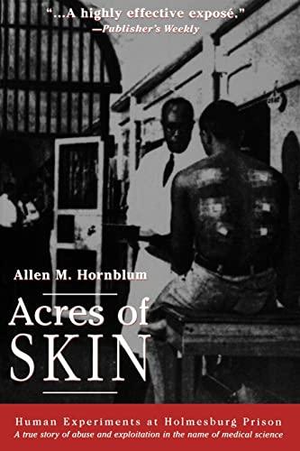 Acres of Skin By Allen M. Hornblum