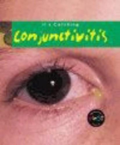 It's Catching: Conjunctivitis Hardback By Angela Royston