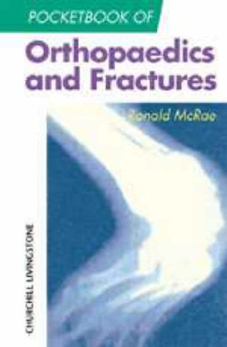 Pocketbook of Orthopaedics and Fractures (Churchill Pocketbooks) By Ronald McRae
