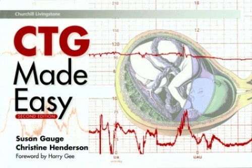 CTG Made Easy by Susan Gauge (Clinical Midwife, Birmingham Women's Healthcare NHS Trust, Birmingham, UK)