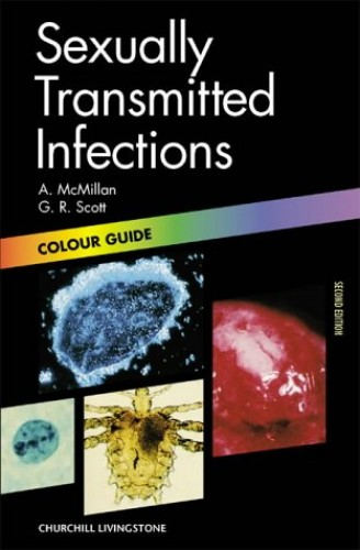 Sexually Transmitted Diseases: Colour Guide by Alexander McMillan