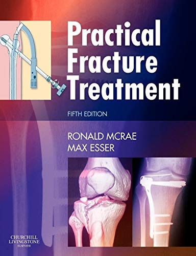 Practical Fracture Treatment, Fith Edition By Ronald McRae