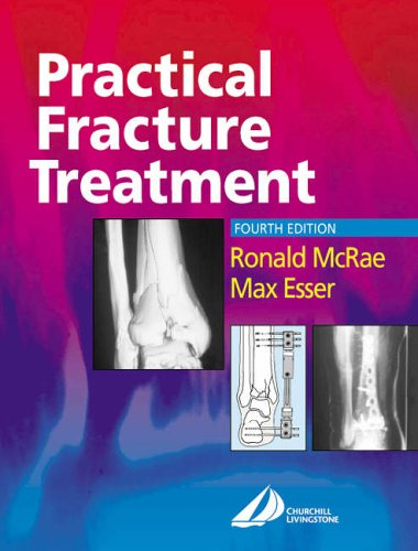 Practical Fracture Treatment By Ronald McRae