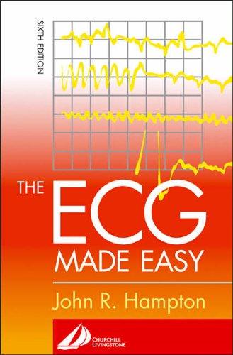 ECG Made Easy The ECG Made Easy By John R. Hampton