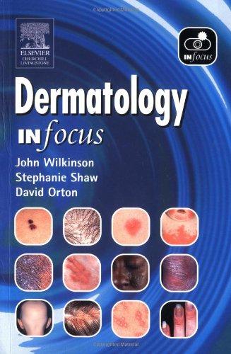 Dermatology in Focus by John D. Wilkinson