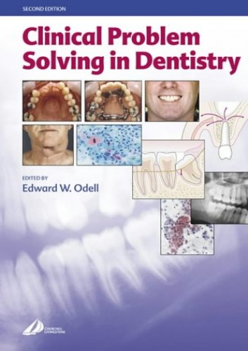 Clinical Problem Solving in Dentistry By Edward W. Odell