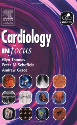 Cardiology in Focus by Glyn Thomas