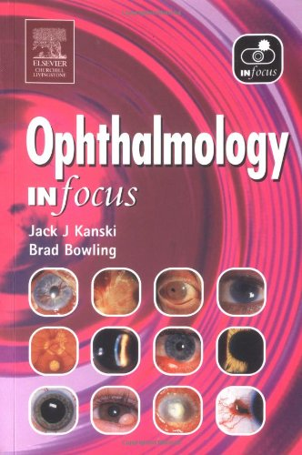 Ophthalmology in Focus By Jack J. Kanski