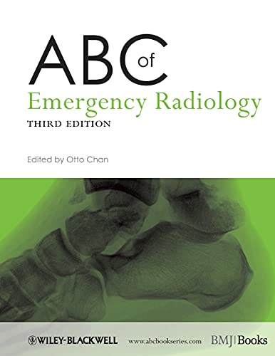 ABC of Emergency Radiology By Edited by Otto Chan