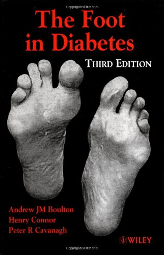 The Foot in Diabetes By Andrew Boulton