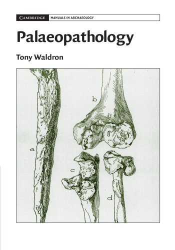 Palaeopathology (Cambridge Manuals in Archaeology) By Tony Waldron (University College London)