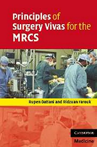 Principles of Surgery Vivas for the MRCS By Rupen Dattani (South West Thames Rotation)