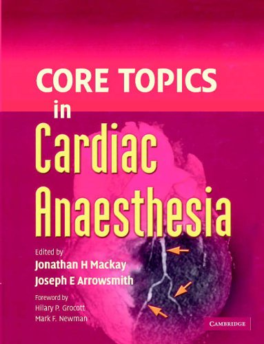 Core Topics in Cardiac Anaesthesia By Edited by Jonathan H. Mackay