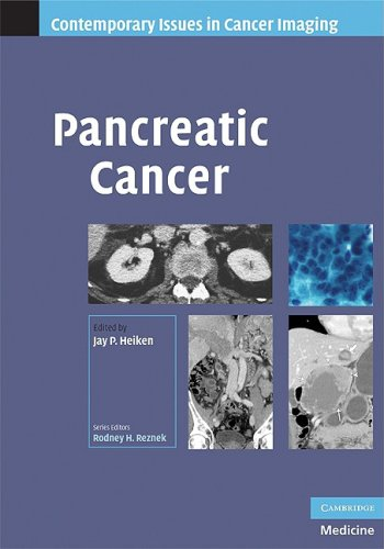 Pancreatic Cancer by Jay P. Heiken