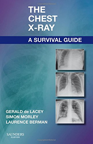 The Chest X-Ray: A Survival Guide, 1e By Gerald De Lacey