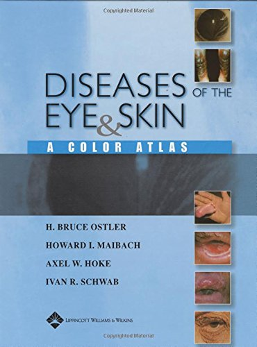 Diseases of the Eye and Skin By H.Bruce Ostler
