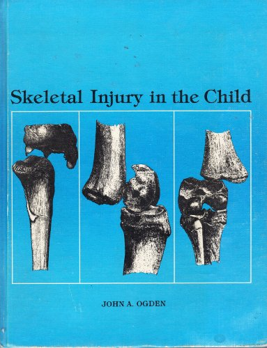 Skeletal Injury in the Child By John A. Ogden