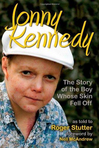 Jonny Kennedy By Roger Stutter