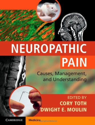 Neuropathic Pain By Edited by Cory Toth