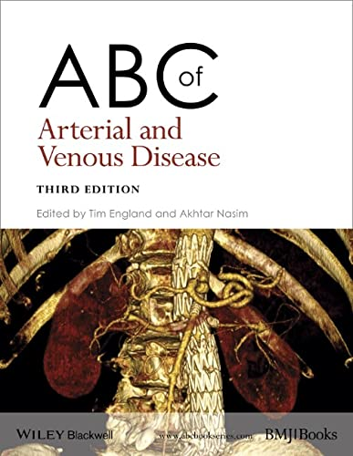 ABC of Arterial and Venous Disease by Tim England