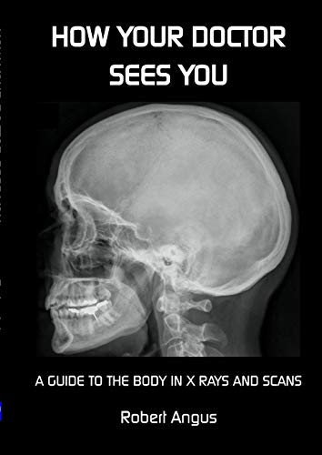 How Your Doctor Sees You By Robert Angus