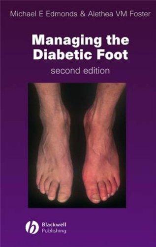 Managing the Diabetic Foot By Michael E. Edmonds