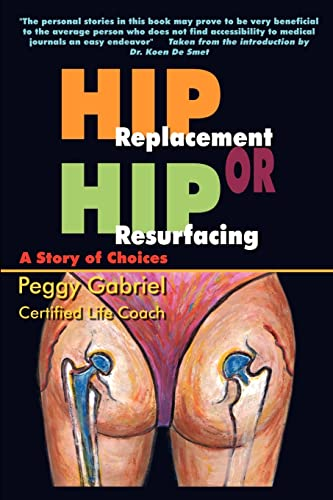 Hip Replacement or Hip Resurfacing: A Story of Choices By Peggy Gabriel