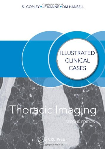 Thoracic Imaging: Illustrated Clinical Cases by Sue Copley