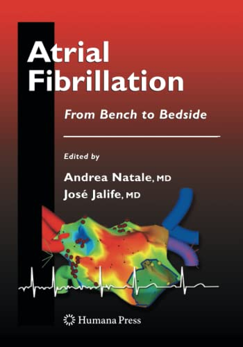 Atrial Fibrillation By Andrea Natale, MD, FACC, FHRS
