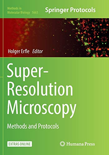 Super-Resolution Microscopy By Holger Erfle