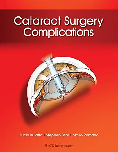 Cataract Surgery Complications By Lucio Buratto