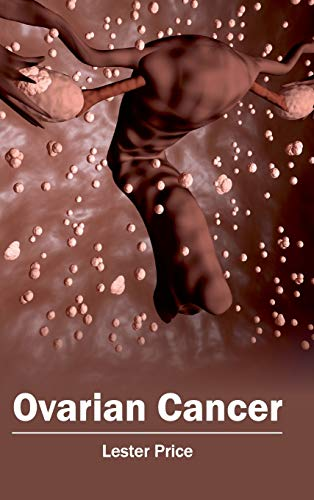 Ovarian Cancer By Lester Price