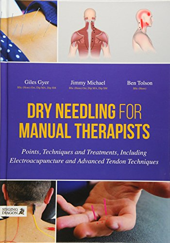 Dry Needling for Manual Therapists: Points, Techniques and Treatments, Including Electroacupuncture and Advanced Tendon Techniques By Giles Gyer