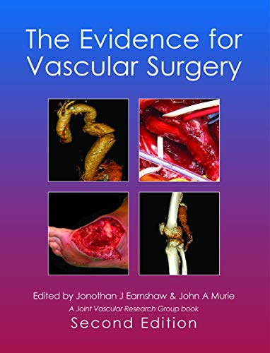 The Evidence for Vascular Surgery By Jonothan J. Earnshaw