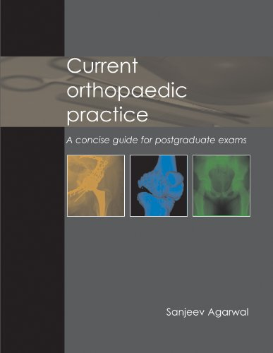 Current Orthopaedic Practice ? a Concise Guide for Postgraduate Exams By Edited by Sanjeev Agarwal, MS FRCS