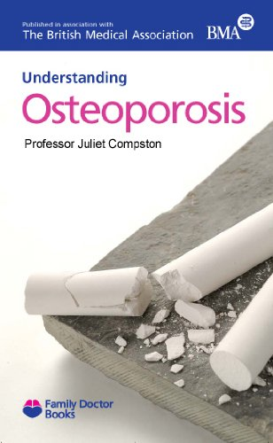 Osteoporosis (Understanding) (Family Doctor Books) By Juliet E. Dr Compston