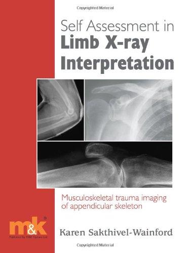 Self-assessment in Limb X-ray Interpretation: Musculoskeletal Trauma Imaging of Appendicular Skeleton by Karen Sakthivel-Wainford