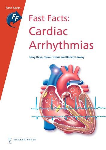 Fast Facts: Cardiac Arrhythmias By Gerry Kaye