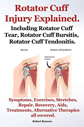 Rotator Cuff Injury Explained. Including Rotator Cuff Tear, Rotator Cuff Bursitis, Rotator Cuff Tendonitis. Symptoms, Exercises, Stretches, Repair, Re By Robert Rymore