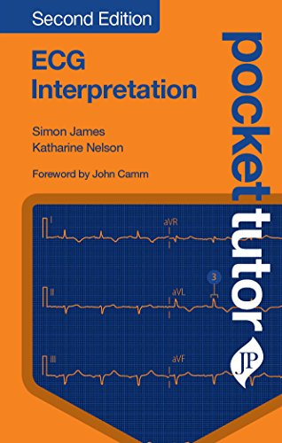 Pocket Tutor ECG Interpretation By Simon James
