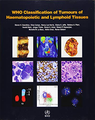 WHO classification of tumours of haematopoietic and lymphoid tissues By International Agency for Research on Cancer