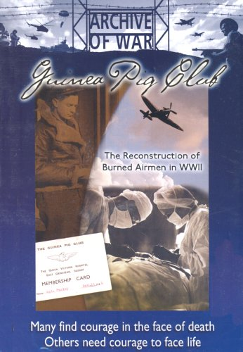 The Guinea Pig Club: The Reconstruction of Burned Airmen in WWII