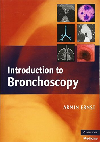 Introduction to Bronchoscopy by Armin Ernst