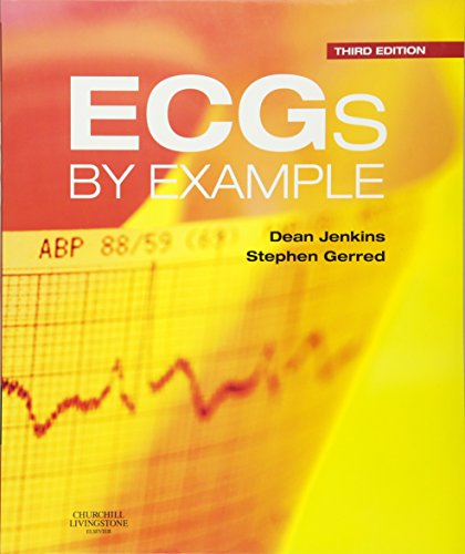 ECGs by Example by Dean Jenkins
