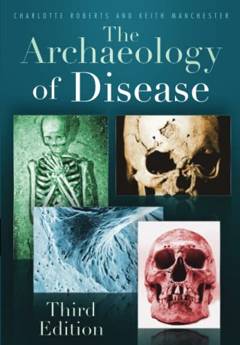 The Archaeology of Disease by Charlotte A. Roberts