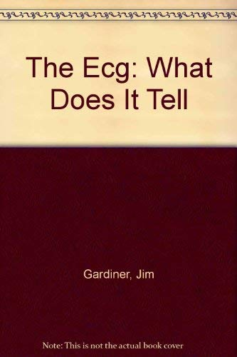 The ECG: What Does it Tell? by J. Gardiner