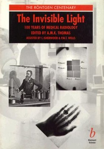 The Invisible Light: 100 Years of Medical Radiology by A. Thomas
